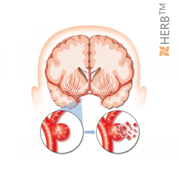оросяване на мозъка и капилярите